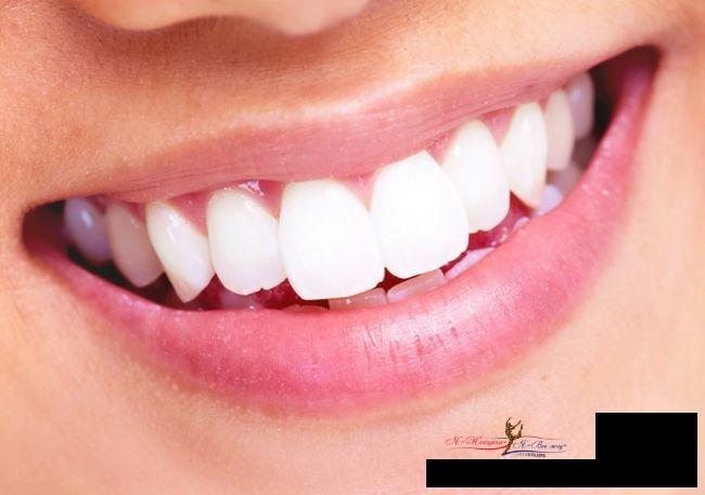 Что необходимо знать о зубном камне