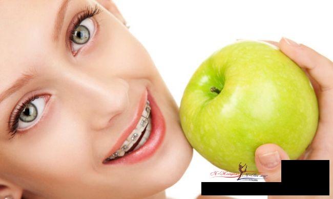 Что можно и нельзя есть с брекетами: диета и питание