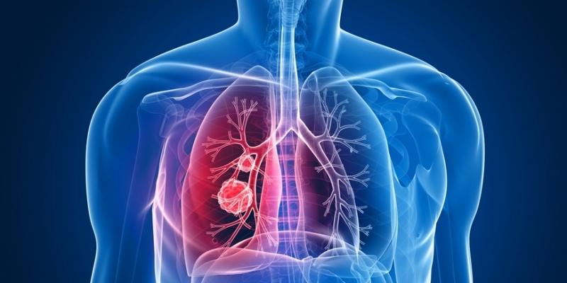 Что вызывает рак легких - «Здоровье»